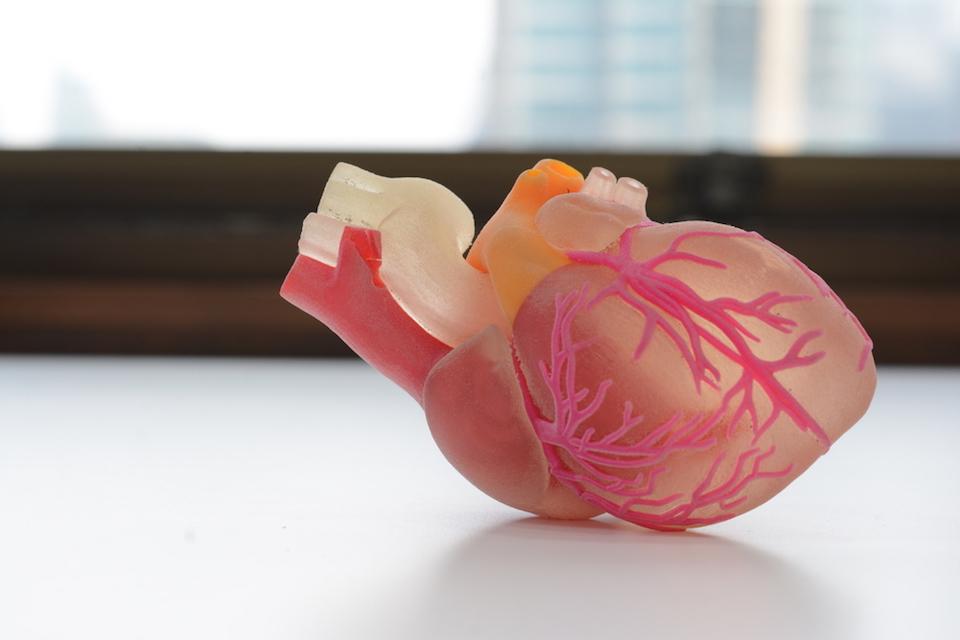 Medtech biomodex cr ateur de maquettes 3d d 39 organes for Createur 3d